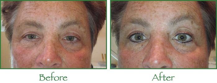 Lasting Looks, permanent makeup